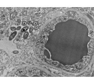 В тканях человеческого мозга замечены бактерии